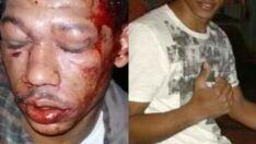 Bandido tenta assaltar pizzaria e deixa duas vítimas feridas