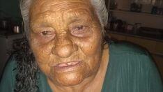 'Não a operei por falta de UTI' diz ortopedista sobre idosa