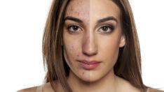 Como proteger a pele com acne em tratamento quando você quiser se maquiar