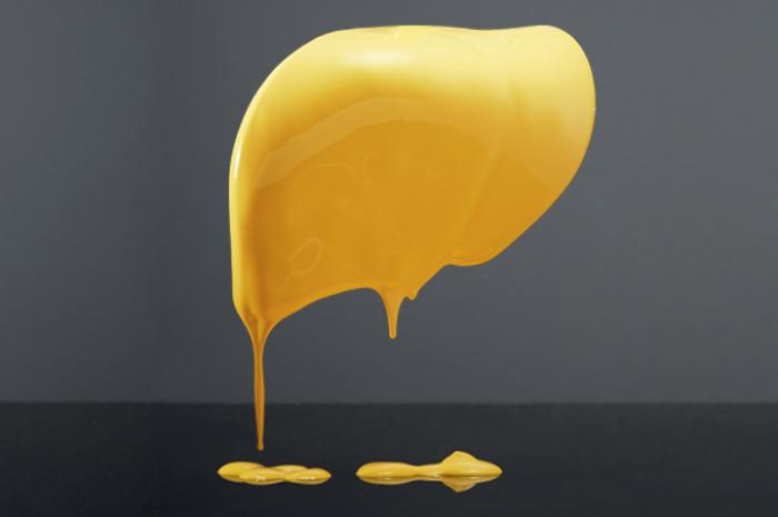O que é a gordura no fígado? Conheça a esteatose hepática e suas causas