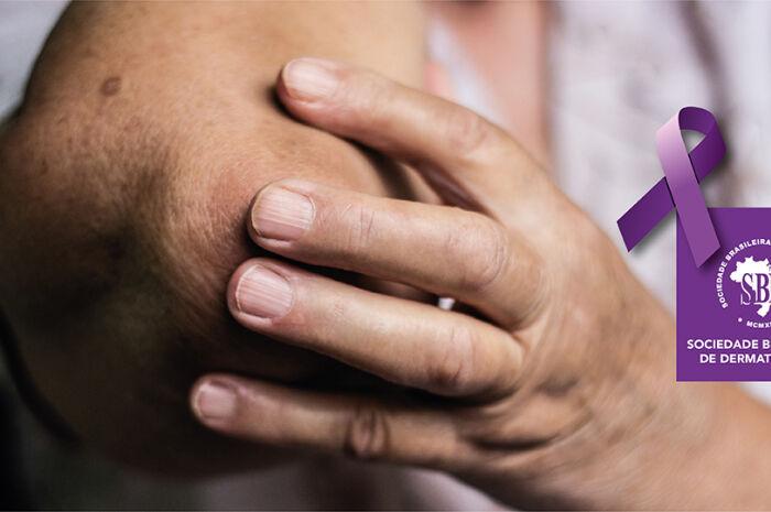 Capital registra queda de 14% de novos casos de hanseníase em 2018