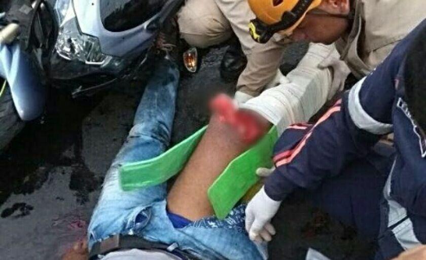 A vítima sofreu uma fratura exposta grave