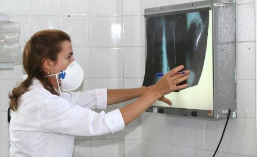 Levantamento destaca a necessidade de os governos aumentarem os esforços de combate à tuberculose que, em 2015, matou 1,8 milhão de pessoas no mundo