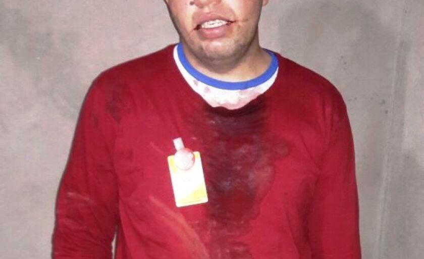 Jovem retornava para casa após o trabalho quando foi atingido pela linha de cerol
