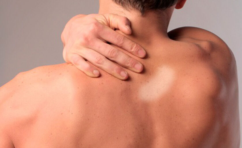 Manchas na pele podem ser sinal de Hanseníase, que se manifesta na pele e nos nervos